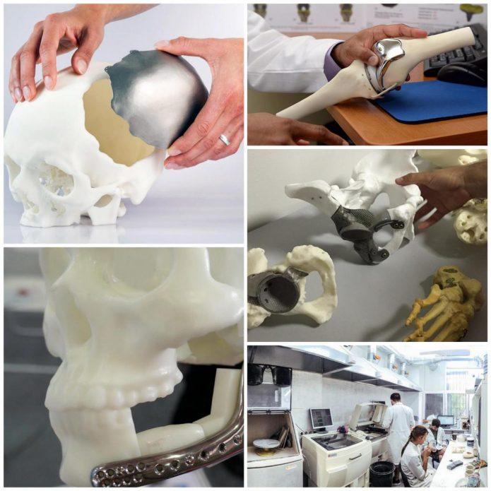 4G имплант с помощью 3D печати